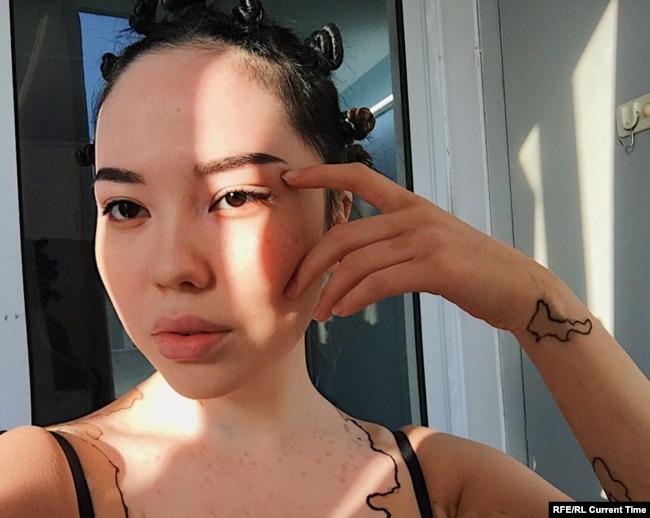 Мадина Индибаева болеет витилиго с 8 лет