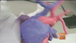 3D на службе у кардиологов