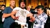 Рассказ раненого резиновой пулей в Тбилиси