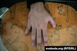 Поврежденная взрывом рука Романа