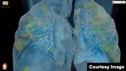 Визуализация последствий COVID-19 для легких человека