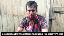 Дмитрий Миропольцев после нападения, 7 августа 2019