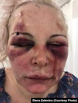 """Одна из жертв домашнего насилия, которой помогает калининградская общественная организация """"Мы против насилия в семье"""""""