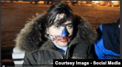 "Дмитрий Купаев, жертва ""Оккупай Педофеляй"", Санкт-Петербург, 2014"