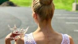 Королева красоты из США с редким генетическим заболеванием