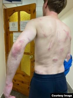 Следы побоев на теле жителя Минска после задержания в ночь с 11 на 12 августа. Фото предоставлено Викторией