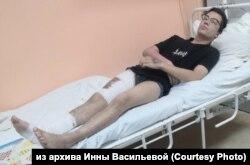 Максим Кокорин, обожженный в машине полиции подросток из Иркутска, после операции