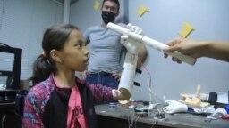Уникальный биопротез руки: совместная работа программистов и врачей из Кыргызстана