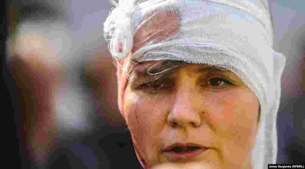 Муниципального депутата Александру Парушину ударили дубинкой по голове, она потеряла сознание