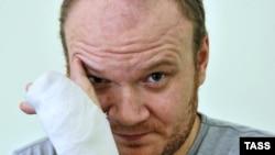 Олег Кашин в больнице после нападения. Декабрь 2010 года