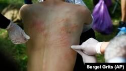 Синяки на теле мужчины, который заявляет, что его избили силовики. Минск, 14 августа 2020