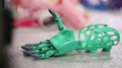 Почему для ребенка важен протез, которым можно хвастать. Ромб. Выпуск 8