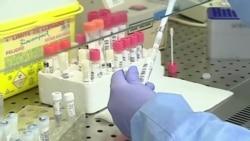 В Украине лаборатории не успевают делать тесты на коронавирус